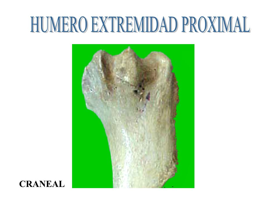 Extremidad proximal