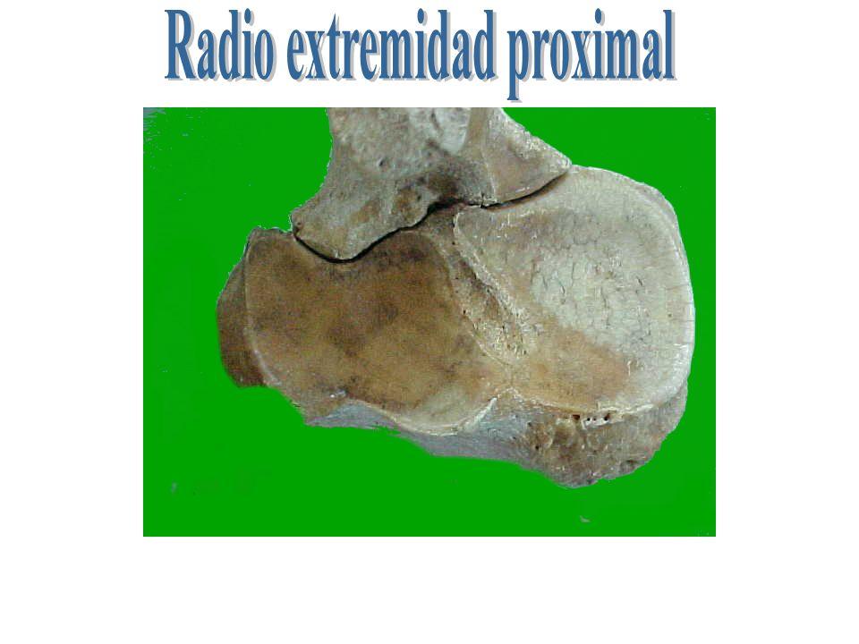 1 2 3 4 5 6 7 8 1 Cara dorsal- 2 cara palmar- 3 sup. Para unión con ulna 4 arcada radio ulnar-5 tub. tendinis.-6 borde medial ( tub. ligamentosa 7 pla