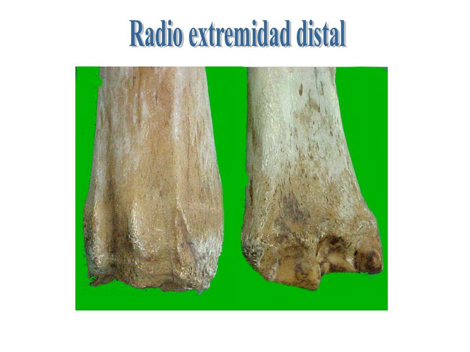 1 2 3 4 5 1 cavidades glenideas-2 apófisis coronoidea- 3 carillas articulares 4 tubérculo ulnar - tuberosidad