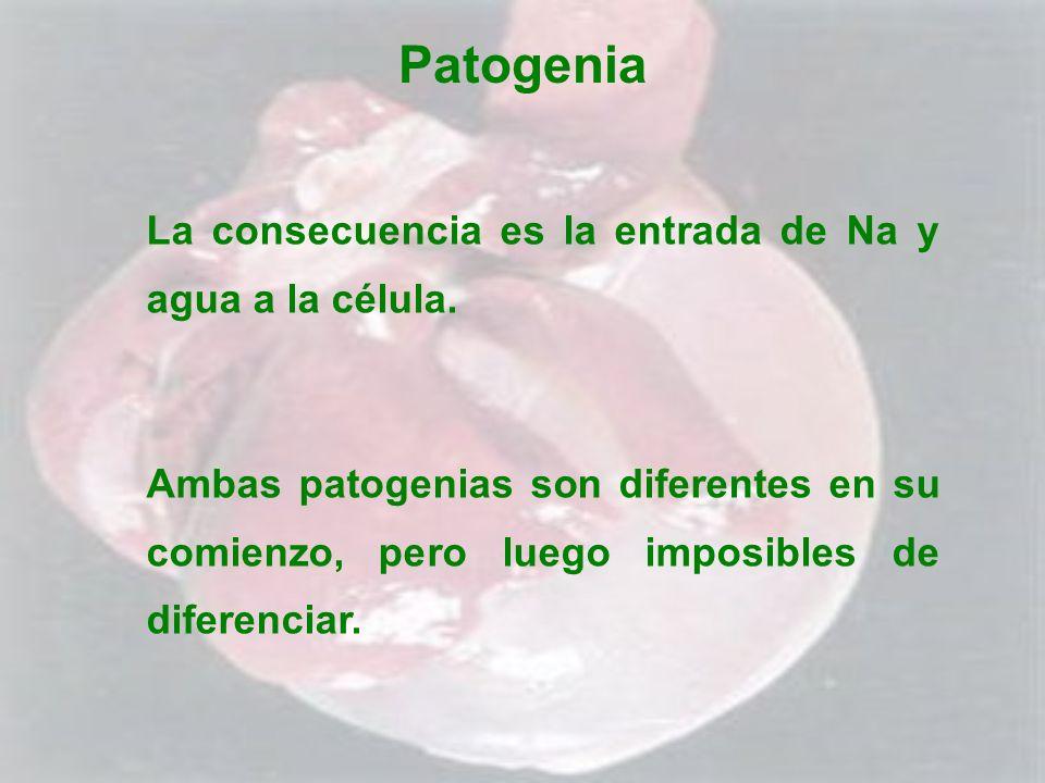 Patogenia La consecuencia es la entrada de Na y agua a la célula. Ambas patogenias son diferentes en su comienzo, pero luego imposibles de diferenciar
