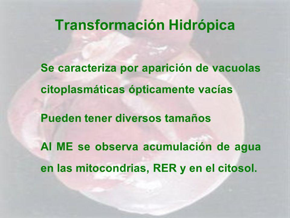 Transformación Hidrópica Se caracteriza por aparición de vacuolas citoplasmáticas ópticamente vacías Pueden tener diversos tamaños Al ME se observa ac