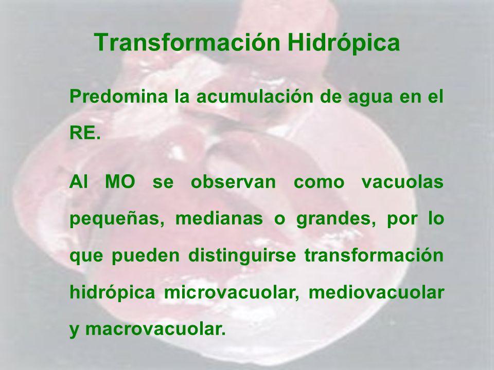 Transformación Hidrópica Predomina la acumulación de agua en el RE. Al MO se observan como vacuolas pequeñas, medianas o grandes, por lo que pueden di
