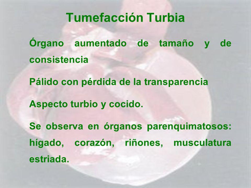Tumefacción Turbia Órgano aumentado de tamaño y de consistencia Pálido con pérdida de la transparencia Aspecto turbio y cocido. Se observa en órganos
