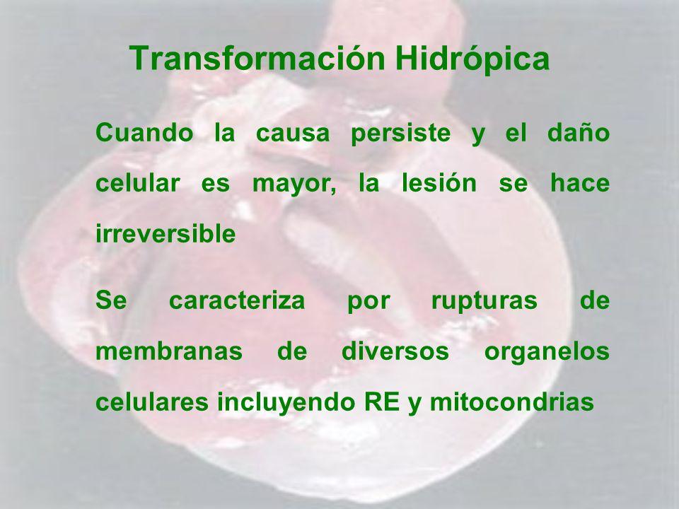 Transformación Hidrópica Cuando la causa persiste y el daño celular es mayor, la lesión se hace irreversible Se caracteriza por rupturas de membranas