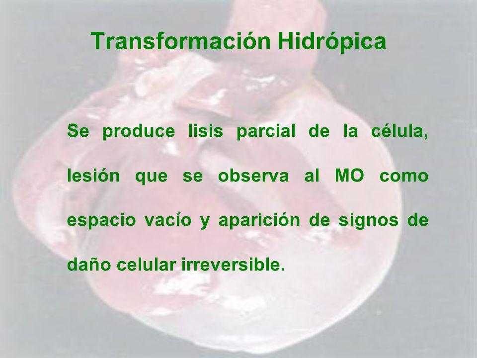 Transformación Hidrópica Se produce lisis parcial de la célula, lesión que se observa al MO como espacio vacío y aparición de signos de daño celular i