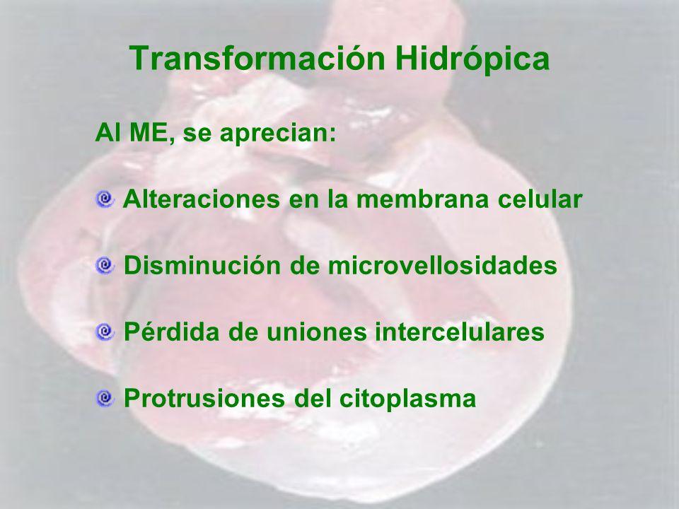 Transformación Hidrópica Al ME, se aprecian: Alteraciones en la membrana celular Disminución de microvellosidades Pérdida de uniones intercelulares Pr