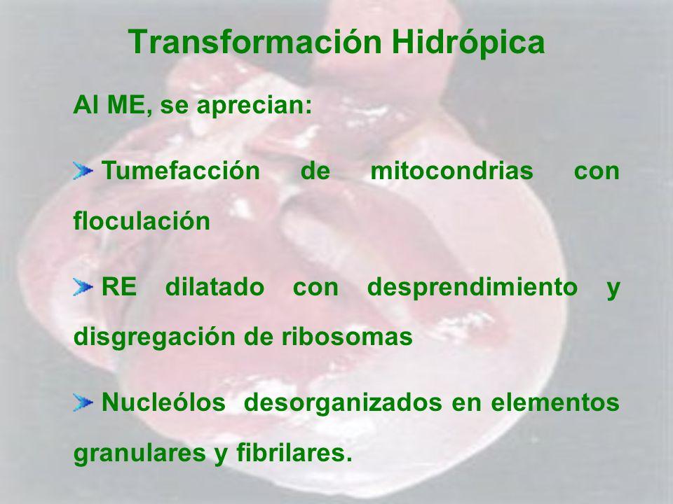 Transformación Hidrópica Al ME, se aprecian: Tumefacción de mitocondrias con floculación RE dilatado con desprendimiento y disgregación de ribosomas N