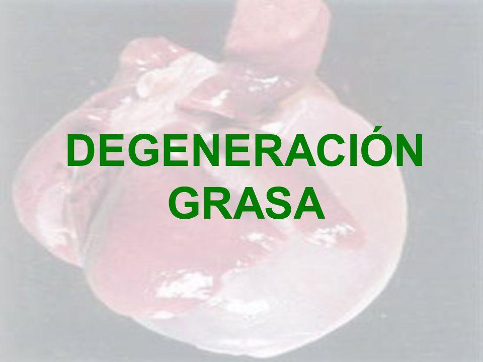 DEGENERACIÓN GRASA