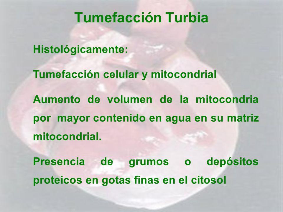 Tumefacción Turbia Histológicamente: Tumefacción celular y mitocondrial Aumento de volumen de la mitocondria por mayor contenido en agua en su matriz