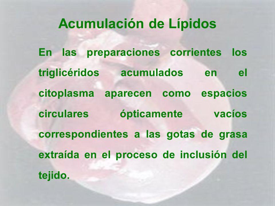 Acumulación de Lípidos En las preparaciones corrientes los triglicéridos acumulados en el citoplasma aparecen como espacios circulares ópticamente vac