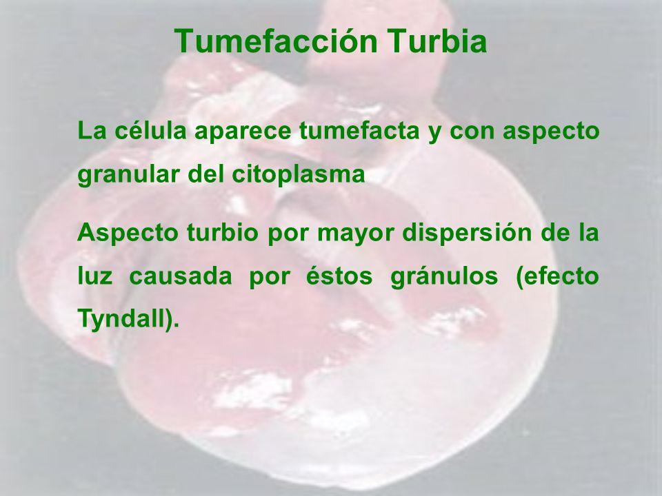 Tumefacción Turbia La célula aparece tumefacta y con aspecto granular del citoplasma Aspecto turbio por mayor dispersión de la luz causada por éstos g