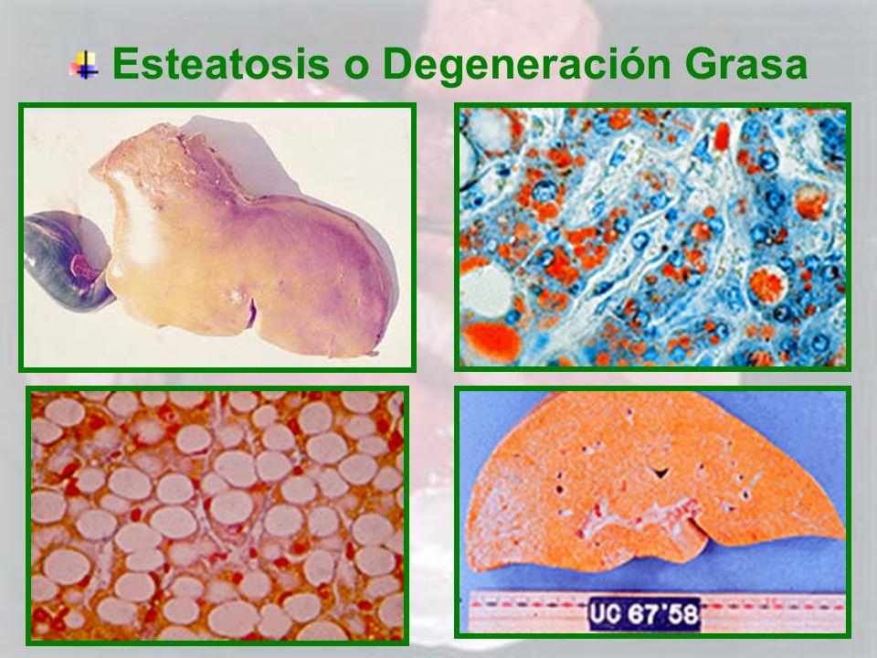 Esteatosis o Degeneración Grasa