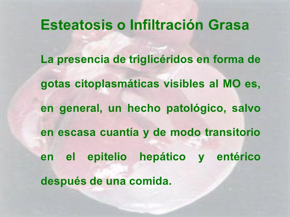 Esteatosis o Infiltración Grasa La presencia de triglicéridos en forma de gotas citoplasmáticas visibles al MO es, en general, un hecho patológico, sa