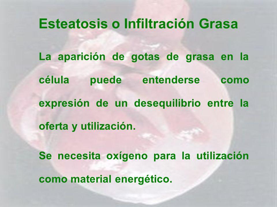 Esteatosis o Infiltración Grasa La aparición de gotas de grasa en la célula puede entenderse como expresión de un desequilibrio entre la oferta y util