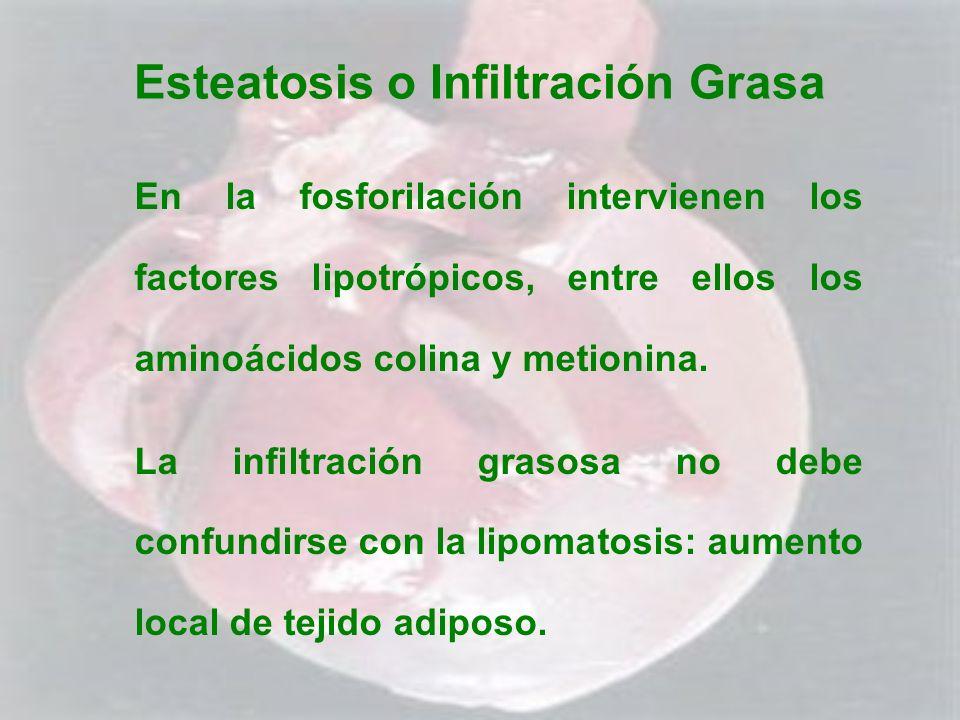 Esteatosis o Infiltración Grasa En la fosforilación intervienen los factores lipotrópicos, entre ellos los aminoácidos colina y metionina. La infiltra