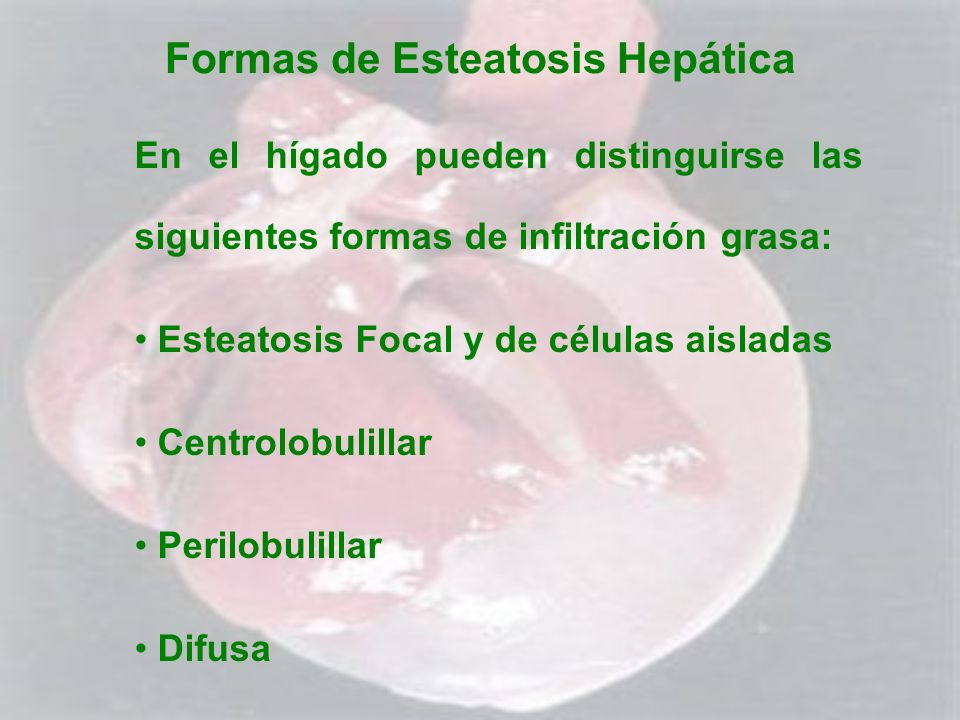 Formas de Esteatosis Hepática En el hígado pueden distinguirse las siguientes formas de infiltración grasa: Esteatosis Focal y de células aisladas Cen