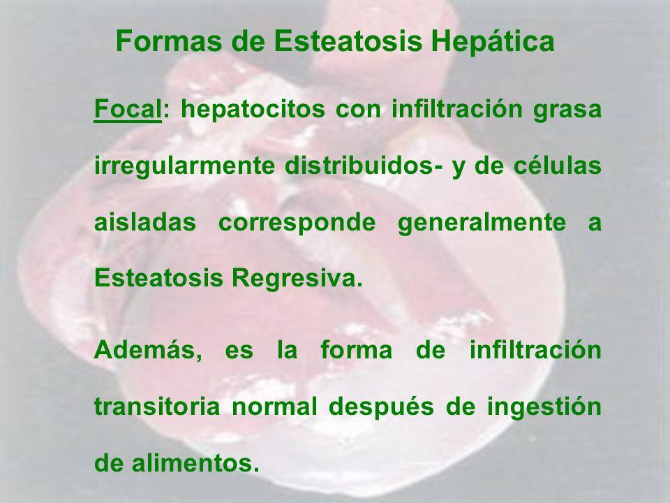 Formas de Esteatosis Hepática Focal Focal: hepatocitos con infiltración grasa irregularmente distribuidos- y de células aisladas corresponde generalme