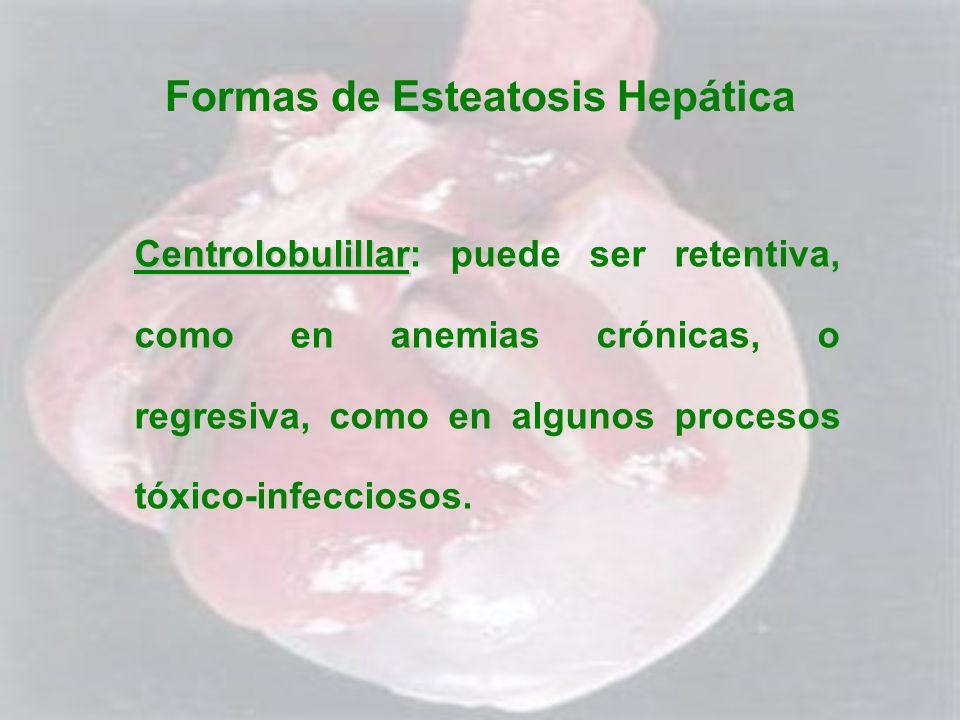 Formas de Esteatosis Hepática Centrolobulillar Centrolobulillar: puede ser retentiva, como en anemias crónicas, o regresiva, como en algunos procesos