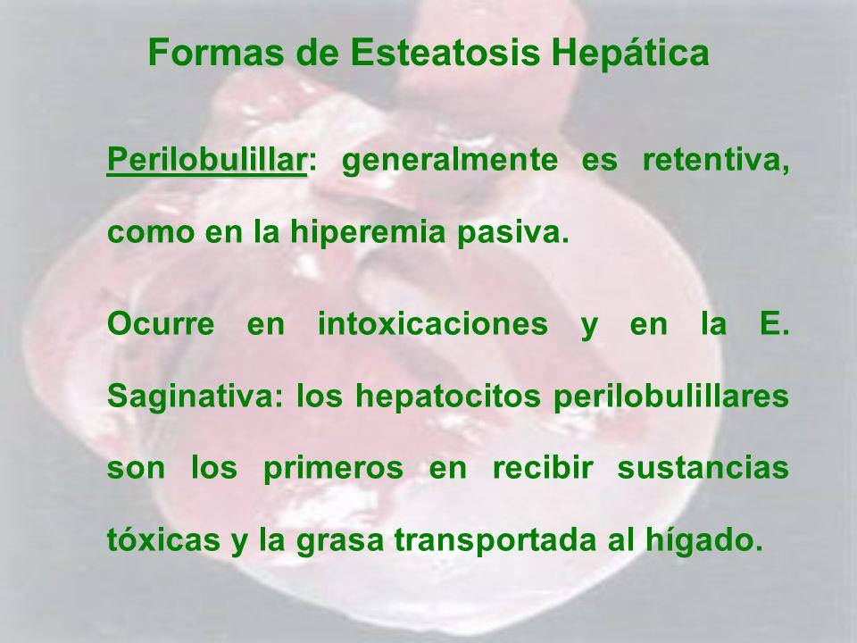 Formas de Esteatosis Hepática Perilobulillar Perilobulillar: generalmente es retentiva, como en la hiperemia pasiva. Ocurre en intoxicaciones y en la