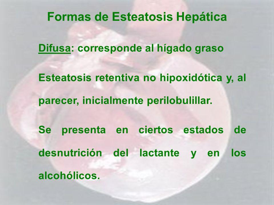 Formas de Esteatosis Hepática Difusa Difusa: corresponde al hígado graso Esteatosis retentiva no hipoxidótica y, al parecer, inicialmente perilobulill