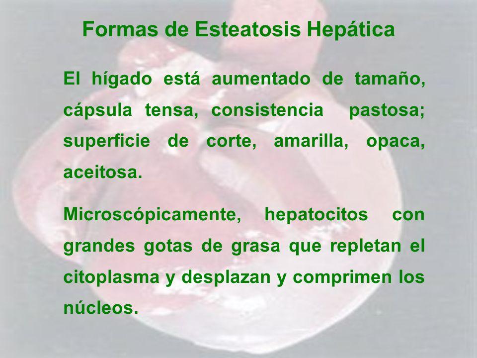 Formas de Esteatosis Hepática El hígado está aumentado de tamaño, cápsula tensa, consistencia pastosa; superficie de corte, amarilla, opaca, aceitosa.