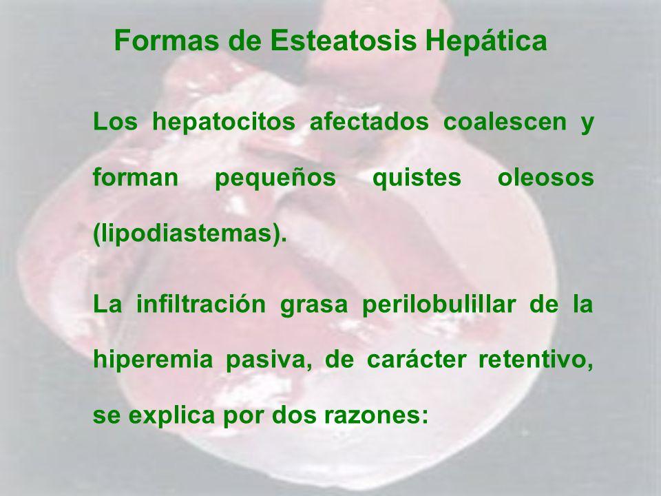 Formas de Esteatosis Hepática Los hepatocitos afectados coalescen y forman pequeños quistes oleosos (lipodiastemas). La infiltración grasa perilobulil