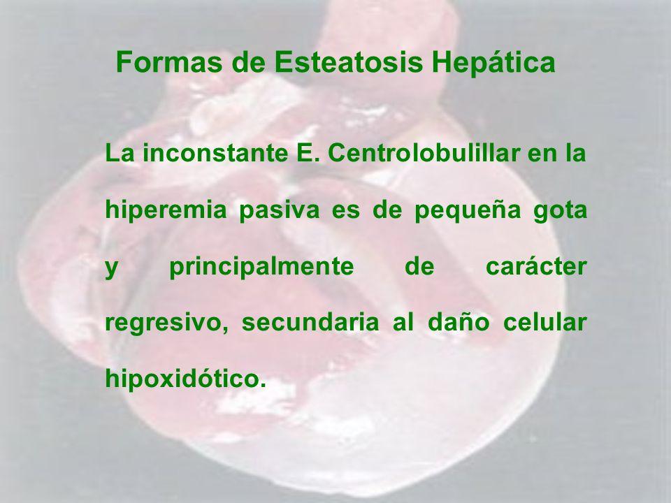 Formas de Esteatosis Hepática La inconstante E. Centrolobulillar en la hiperemia pasiva es de pequeña gota y principalmente de carácter regresivo, sec