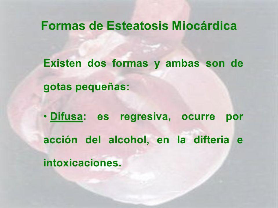 Formas de Esteatosis Miocárdica Existen dos formas y ambas son de gotas pequeñas: Difusa Difusa: es regresiva, ocurre por acción del alcohol, en la di