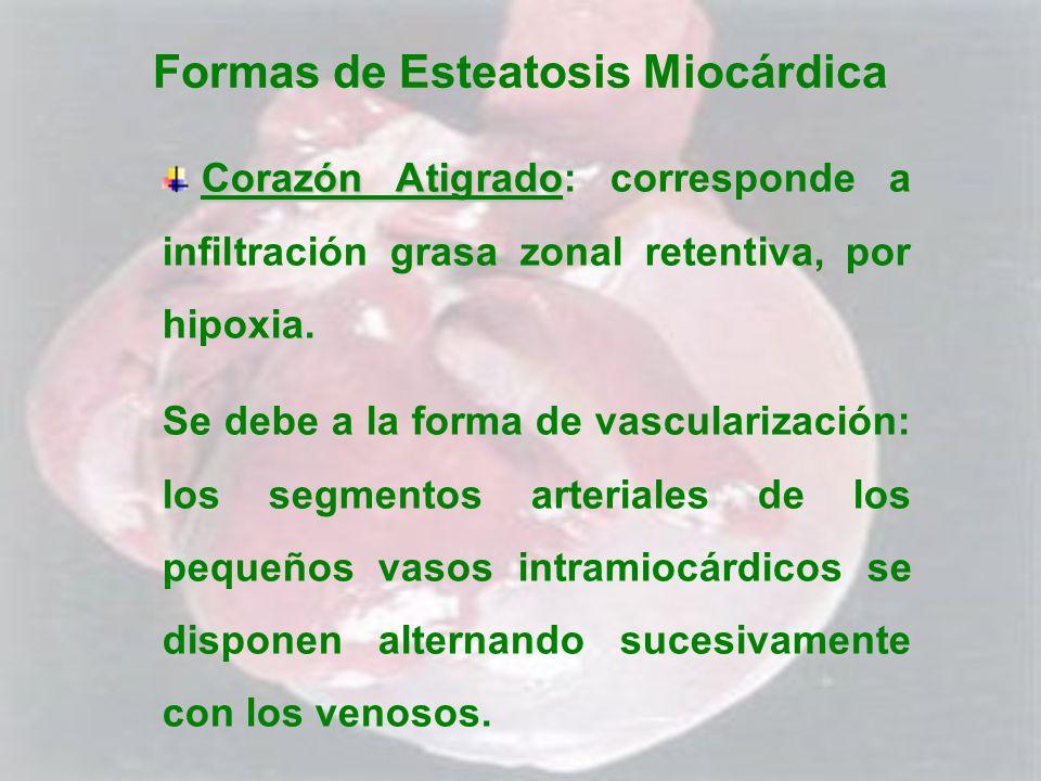 Formas de Esteatosis Miocárdica Corazón Atigrado Corazón Atigrado: corresponde a infiltración grasa zonal retentiva, por hipoxia. Se debe a la forma d
