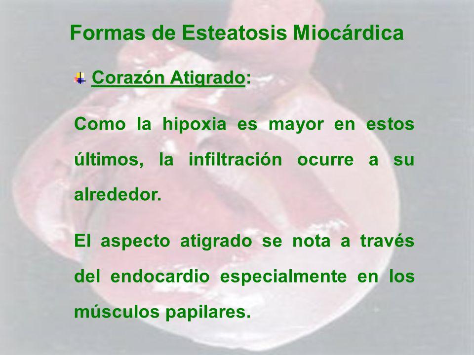 Formas de Esteatosis Miocárdica Corazón Atigrado Corazón Atigrado: Como la hipoxia es mayor en estos últimos, la infiltración ocurre a su alrededor. E