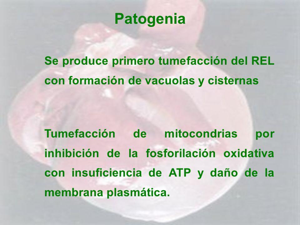 Patogenia Se produce primero tumefacción del REL con formación de vacuolas y cisternas Tumefacción de mitocondrias por inhibición de la fosforilación