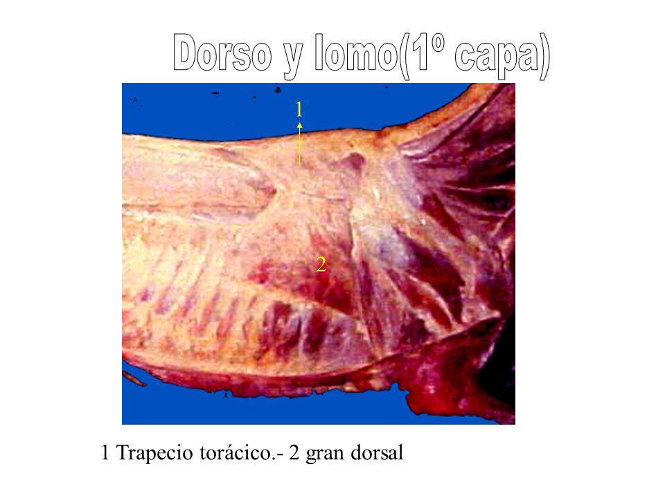 1 2 1 Trapecio torácico.- 2 gran dorsal