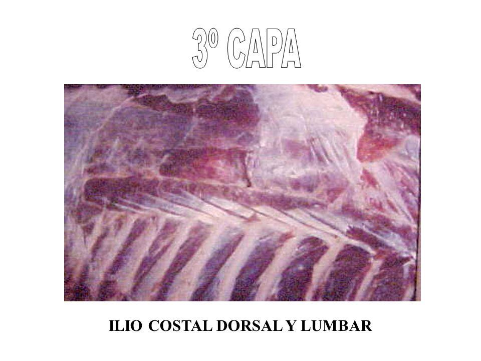 ILIO COSTAL DORSAL Y LUMBAR
