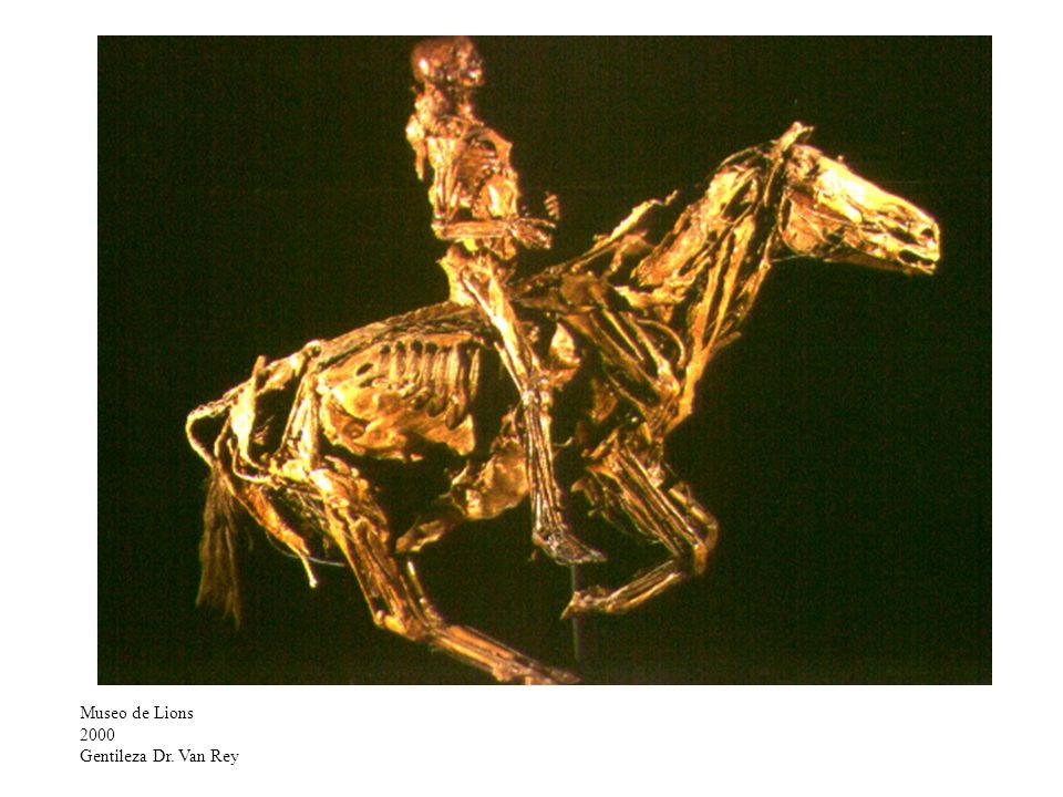 Museo de Lions 2000 Gentileza Dr. Van Rey