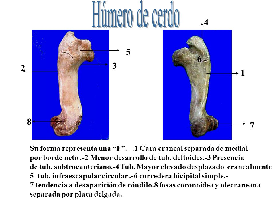 Su forma representa una F.--.1 Cara craneal separada de medial por borde neto.-2 Menor desarrollo de tub. deltoides.-3 Presencia de tub. subtrocanteri