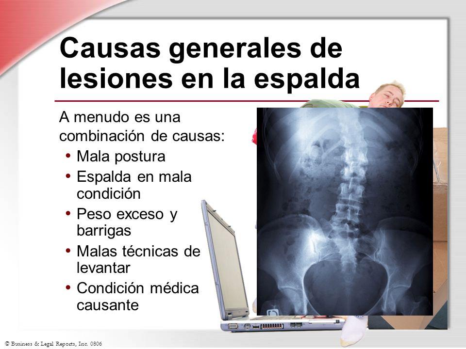 © Business & Legal Reports, Inc. 0806 Causas generales de lesiones en la espalda A menudo es una combinación de causas: Mala postura Espalda en mala c