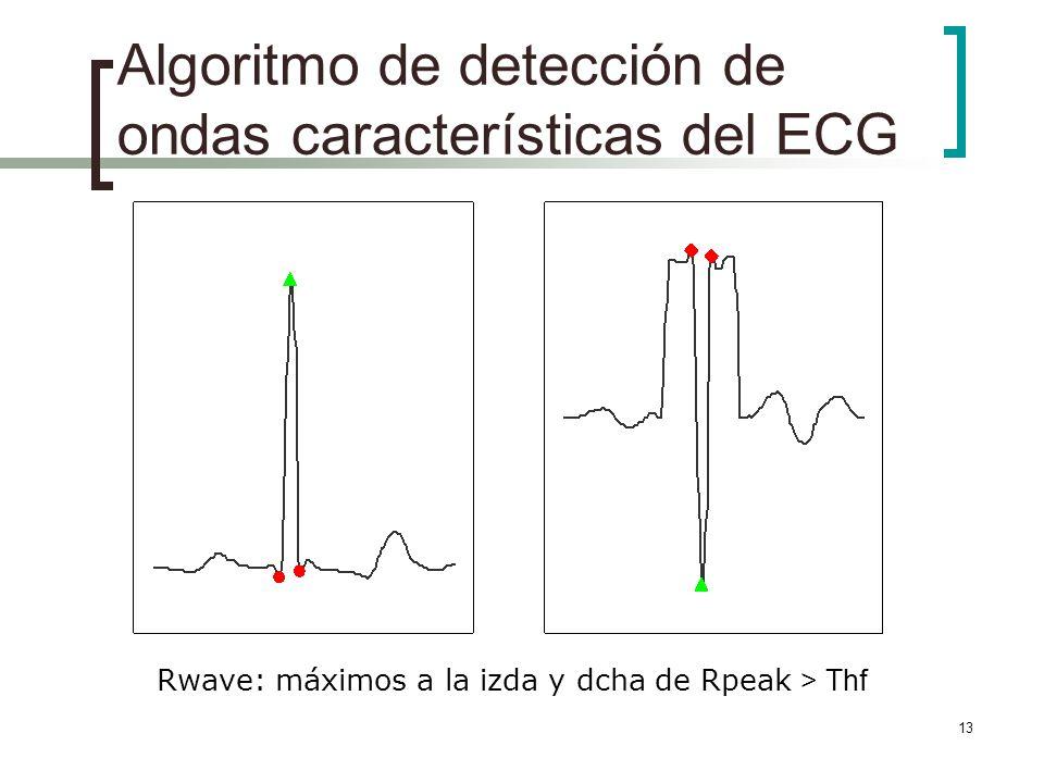 13 Algoritmo de detección de ondas características del ECG Rwave: máximos a la izda y dcha de Rpeak > Thf