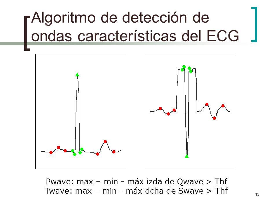 15 Algoritmo de detección de ondas características del ECG Pwave: max – min - máx izda de Qwave > Thf Twave: max – min - máx dcha de Swave > Thf