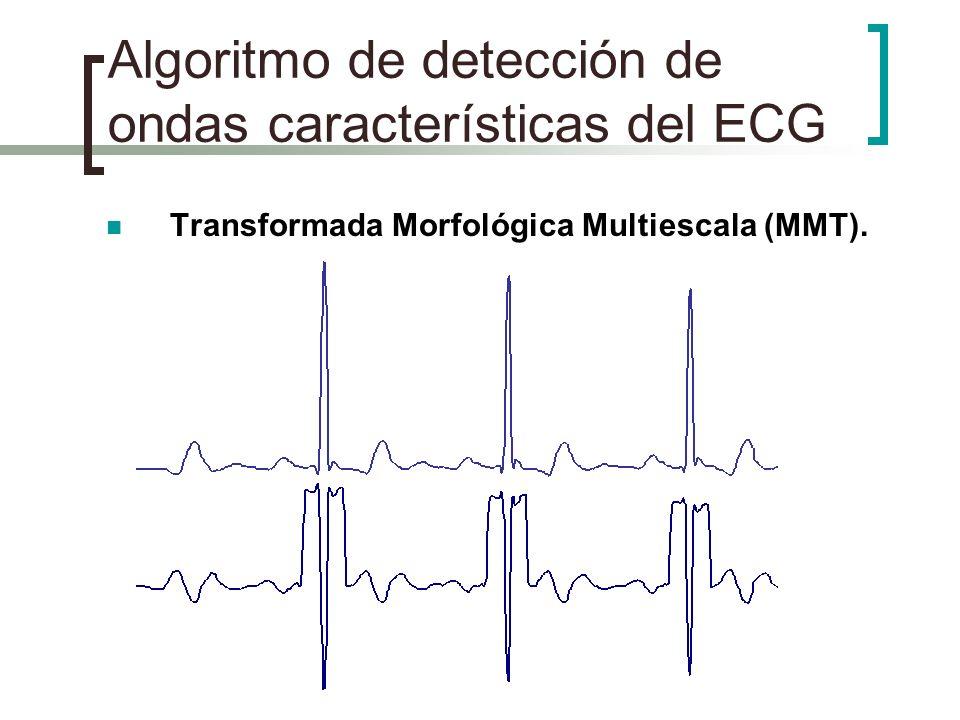 Algoritmo de detección de ondas características del ECG Transformada Morfológica Multiescala (MMT).