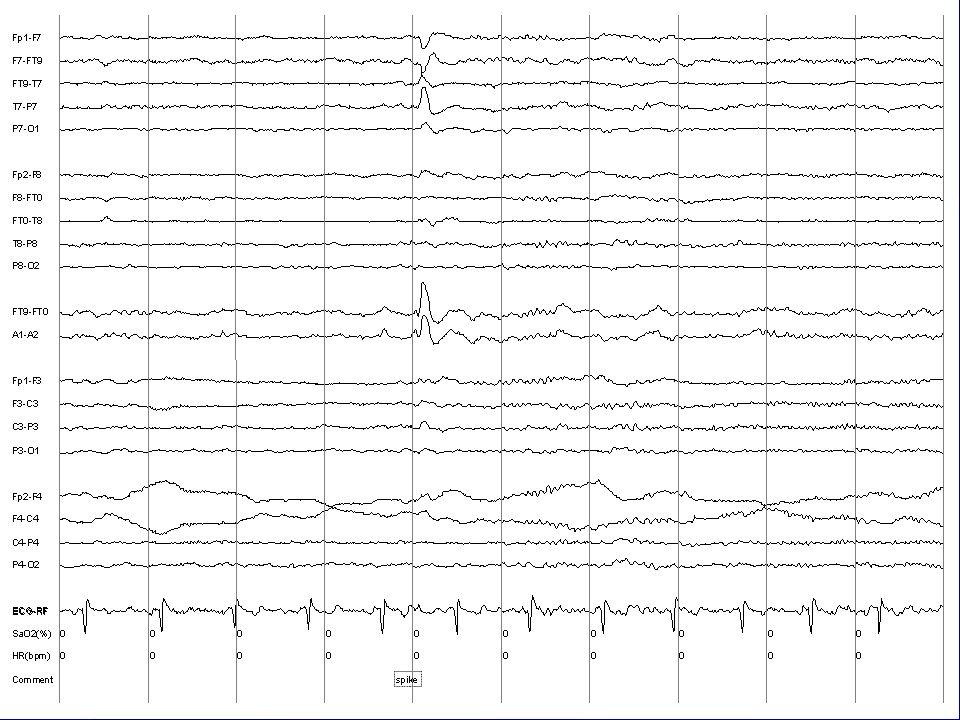 EEG Slide 99-10-31/ROUTINE