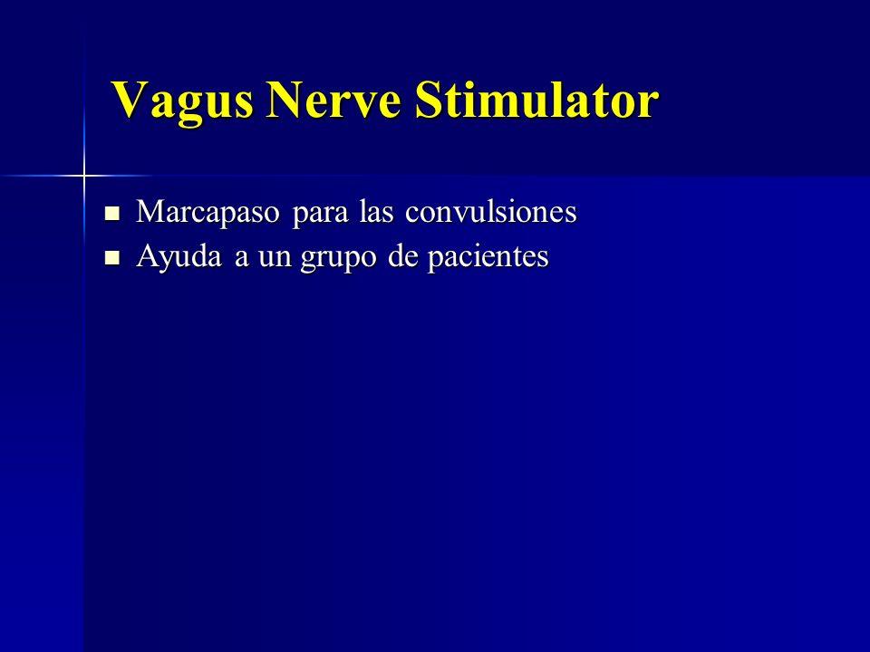 Vagus Nerve Stimulator Marcapaso para las convulsiones Marcapaso para las convulsiones Ayuda a un grupo de pacientes Ayuda a un grupo de pacientes