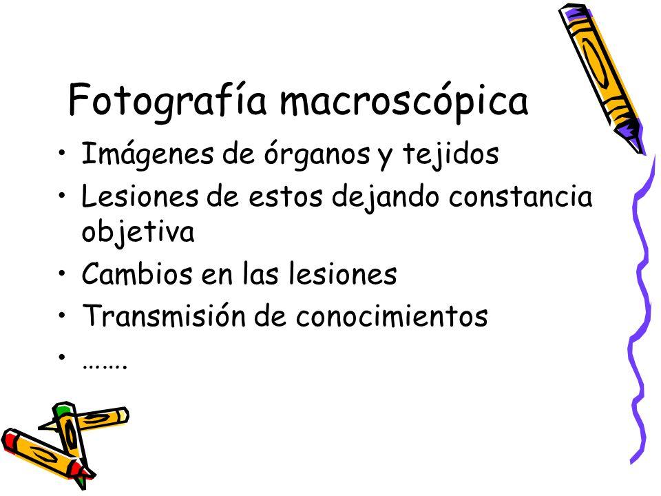 Fotografía macroscópica Imágenes de órganos y tejidos Lesiones de estos dejando constancia objetiva Cambios en las lesiones Transmisión de conocimientos …….