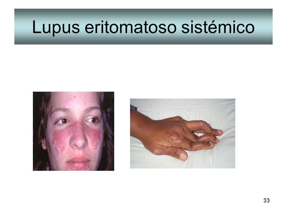 33 Lupus eritomatoso sistémico