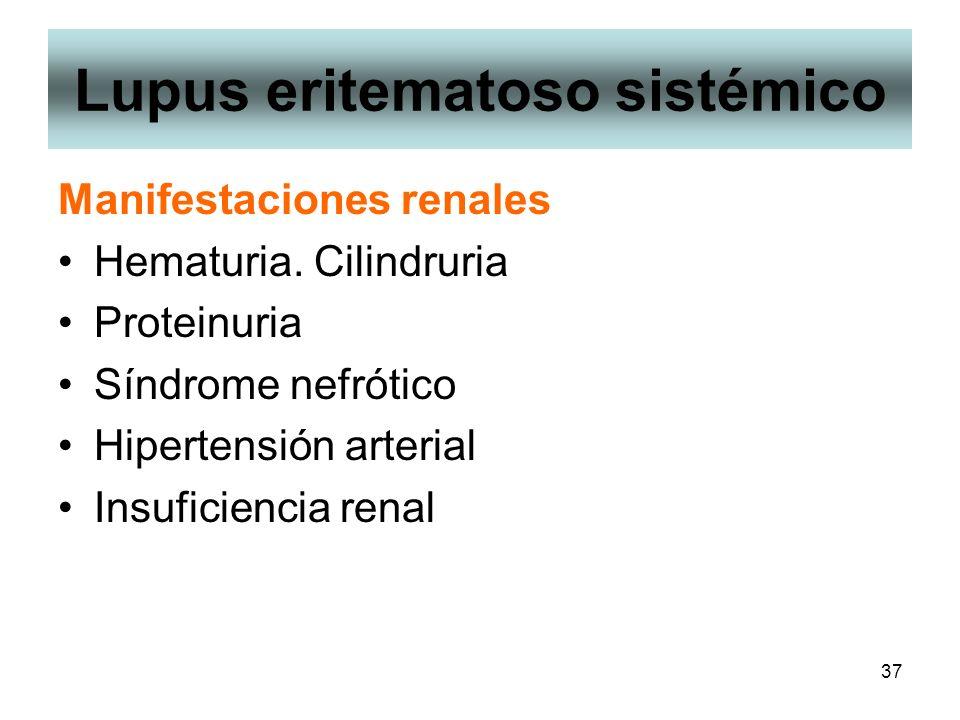 37 Lupus eritematoso sistémico Manifestaciones renales Hematuria. Cilindruria Proteinuria Síndrome nefrótico Hipertensión arterial Insuficiencia renal