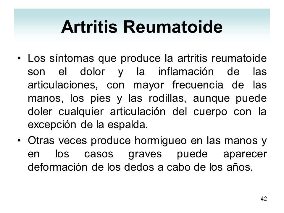 42 Artritis Reumatoide Los síntomas que produce la artritis reumatoide son el dolor y la inflamación de las articulaciones, con mayor frecuencia de la