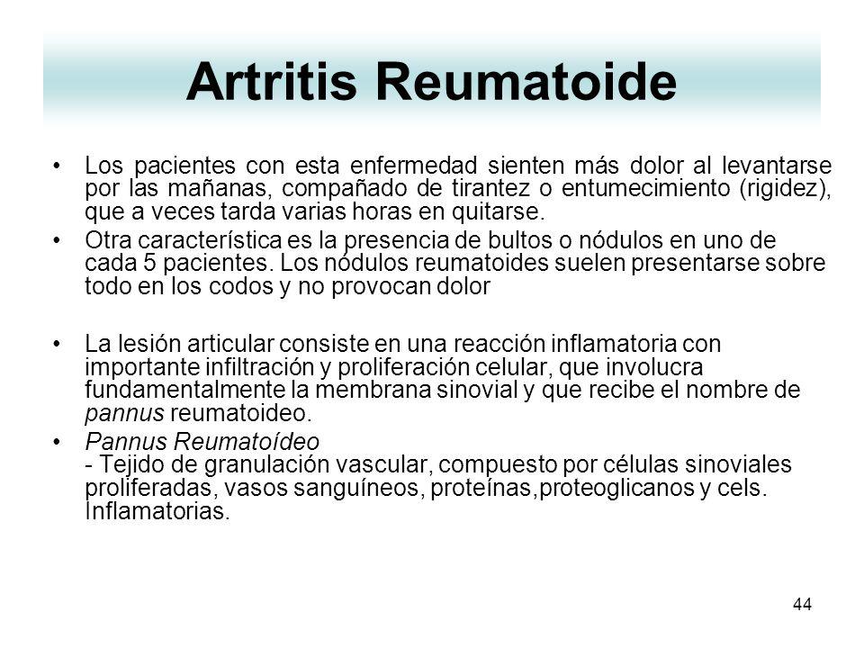 44 Artritis Reumatoide Los pacientes con esta enfermedad sienten más dolor al levantarse por las mañanas, compañado de tirantez o entumecimiento (rigi