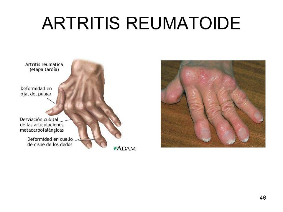 46 ARTRITIS REUMATOIDE