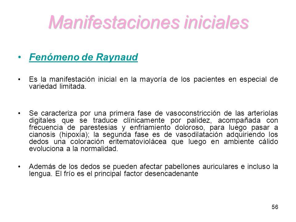 56 Manifestaciones iniciales Fenómeno de Raynaud Es la manifestación inicial en la mayoría de los pacientes en especial de variedad limitada. Se carac