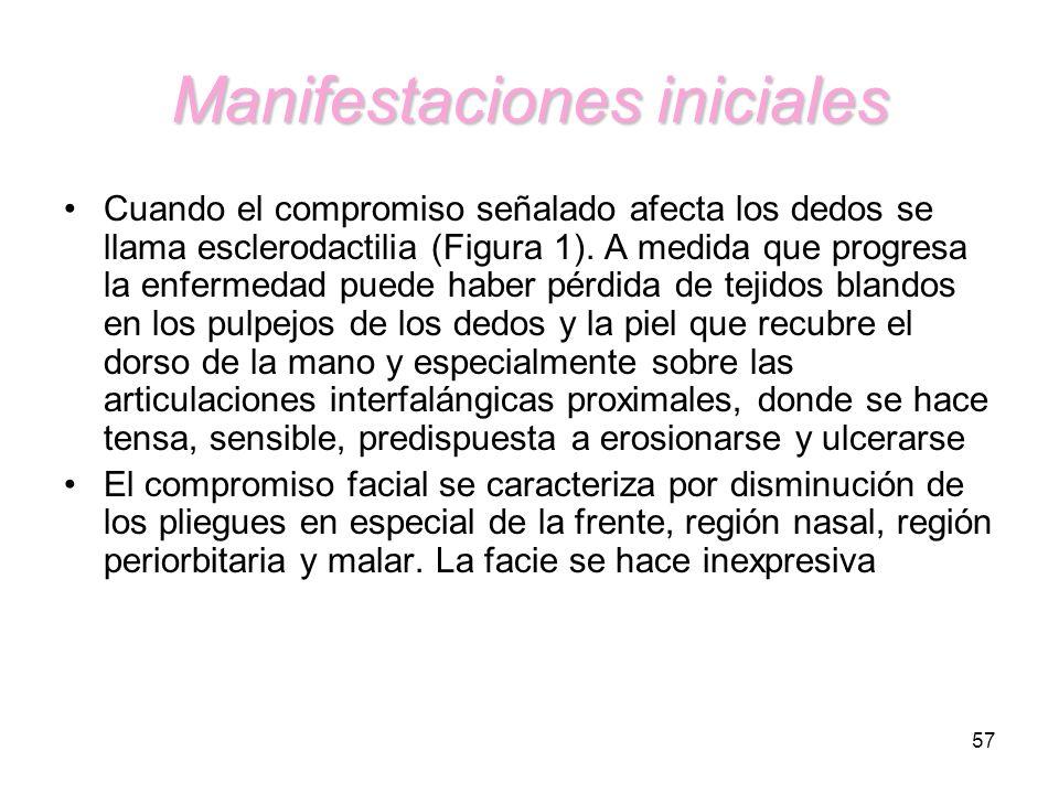 57 Manifestaciones iniciales Cuando el compromiso señalado afecta los dedos se llama esclerodactilia (Figura 1). A medida que progresa la enfermedad p