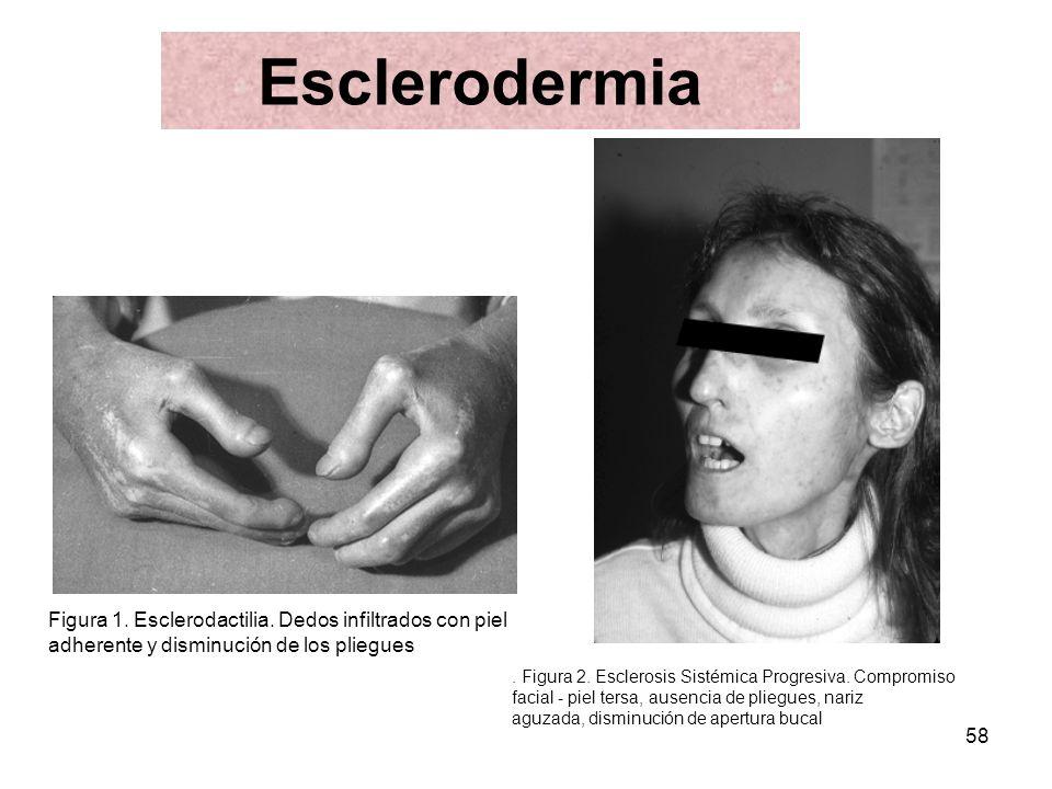 58 Esclerodermia Figura 1. Esclerodactilia. Dedos infiltrados con piel adherente y disminución de los pliegues. Figura 2. Esclerosis Sistémica Progres